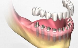 Установка имплантов при полном отсутствии зубов