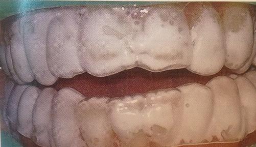 Як відновити емаль зубів в домашніх умовах
