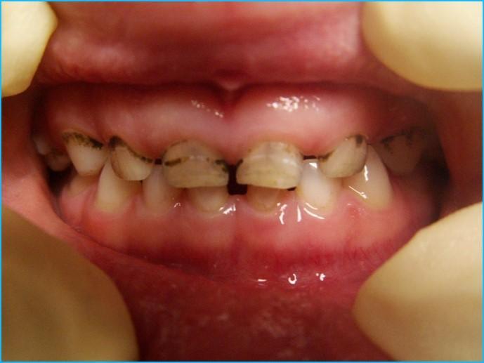 черные точки на зубах у детей