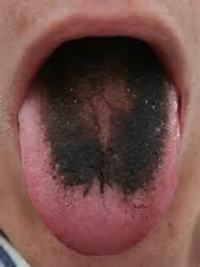 Черный налет на языке