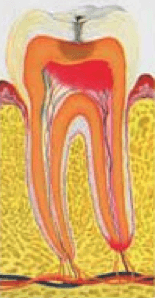Хронический фиброзный периодонтит