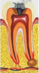 Хронический гранулёматозный периодонтит