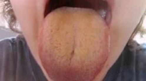 Коричневый цвет языка посередине