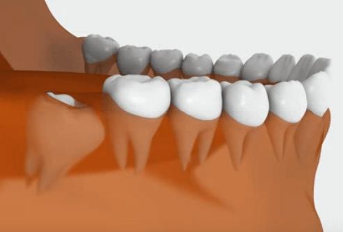 Проявления пульпита зуба мудрости и способы справиться с болью