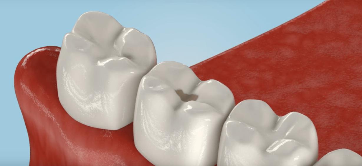 Острый гнойный периостит — причины, симптомы и лечение