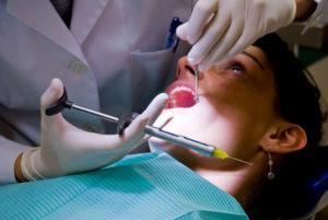 Удаления зуба