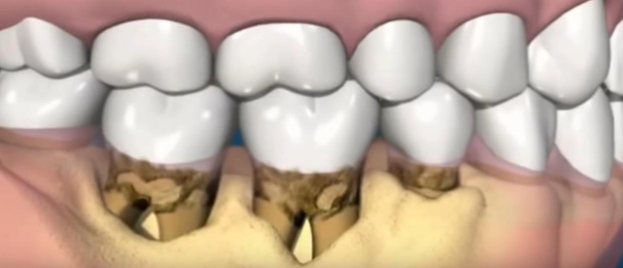 Как выглядит зубной камень и в чем причины его возникновения