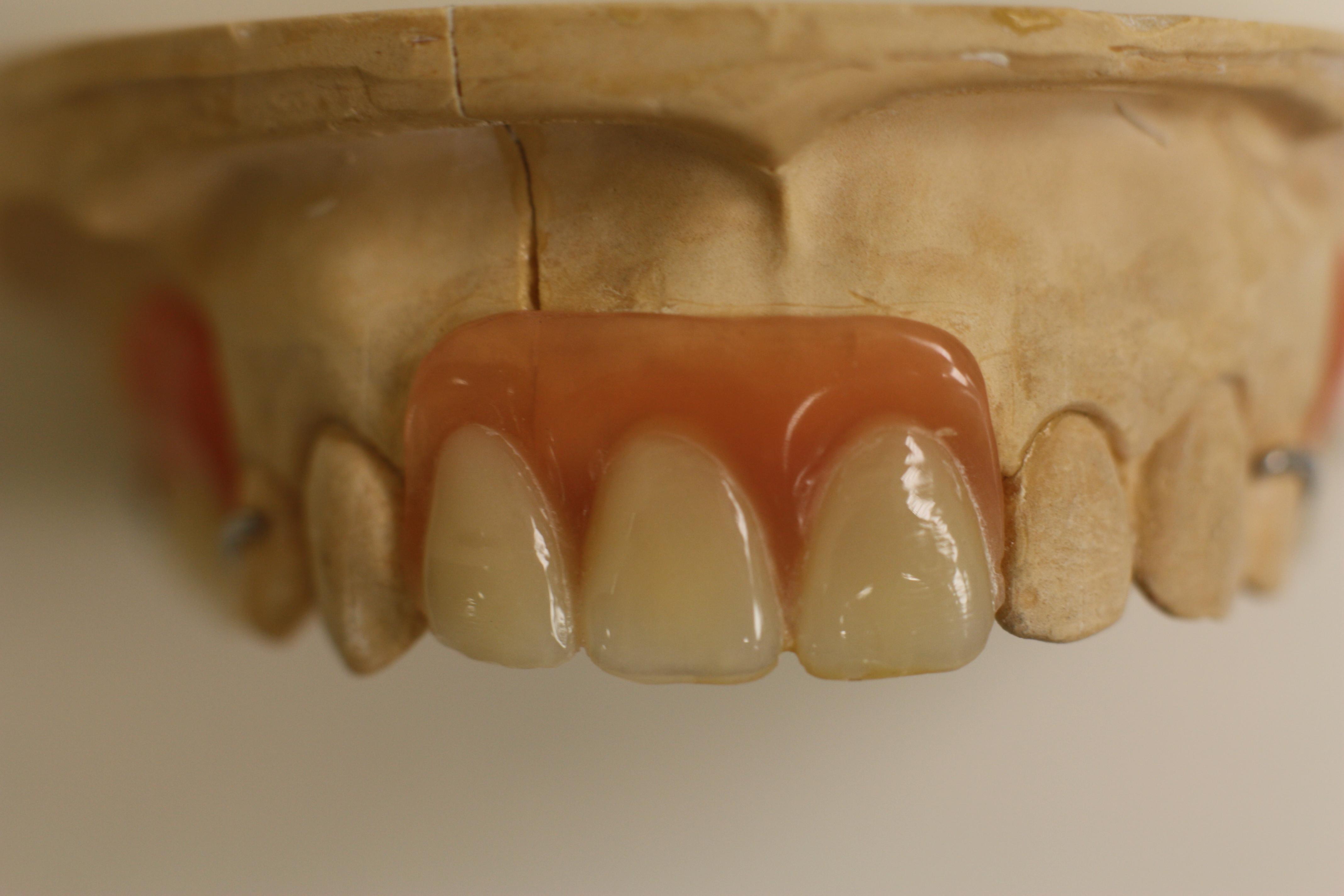 Бабочка зубной протез