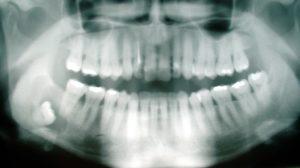 Зубосодержащая киста челюсти