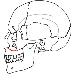 Перелом челюсти верхней