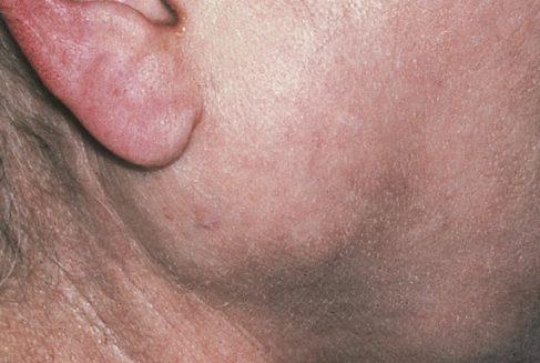 Припухлость в области щек