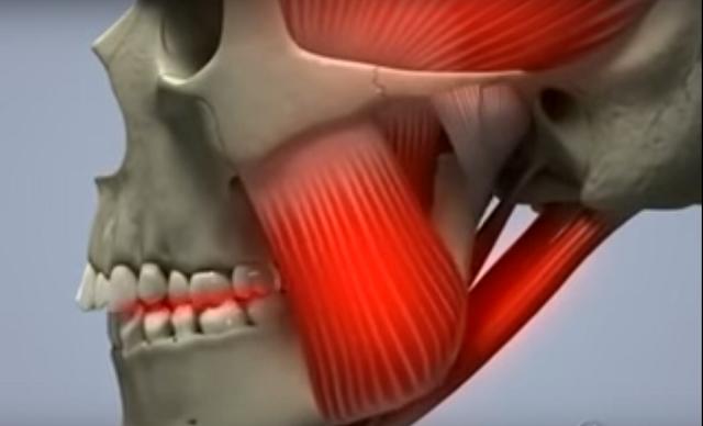 Щелчки в челюсти