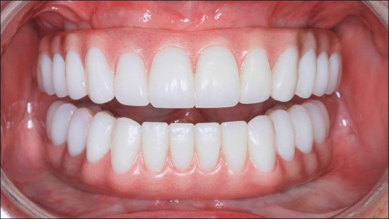 Какой вид протезирования зубов лучше выбрать