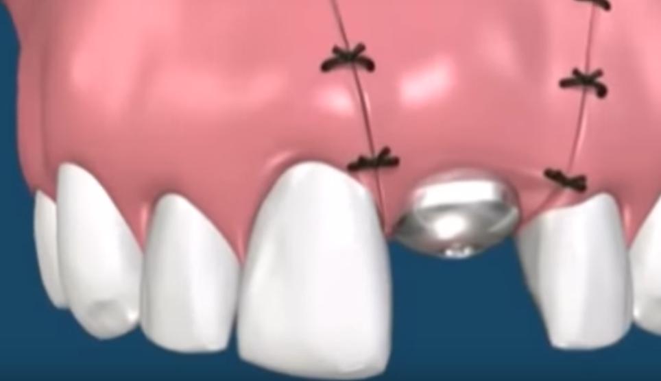 Пластика десны после имплантации - цены на пластику десны при имплантации зубов