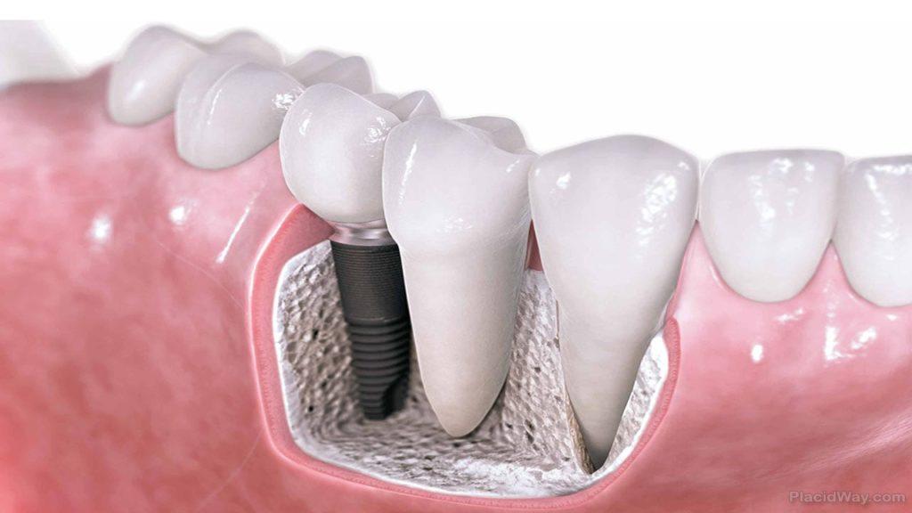 Замена зубных имплантов и коронки зуба