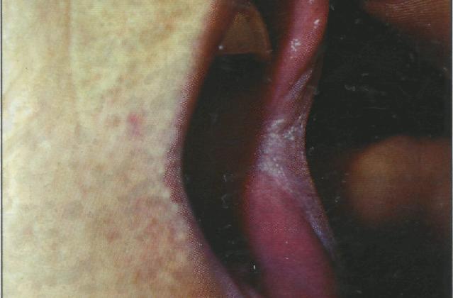 Лейкоплакия в уголке рта