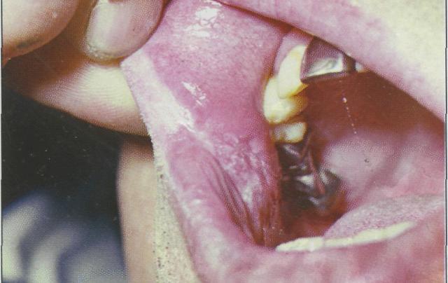 болезнь курильщика