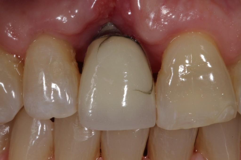 Пластика десны после имплантации картинки