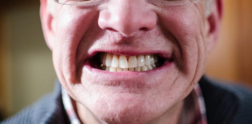 Что такое имплантация зубов без разреза десны и швов, цена в Москве, как проводят операцию без разрезания, фото