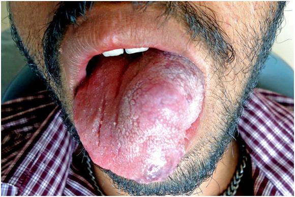 Язык опух что делать в домашних условиях