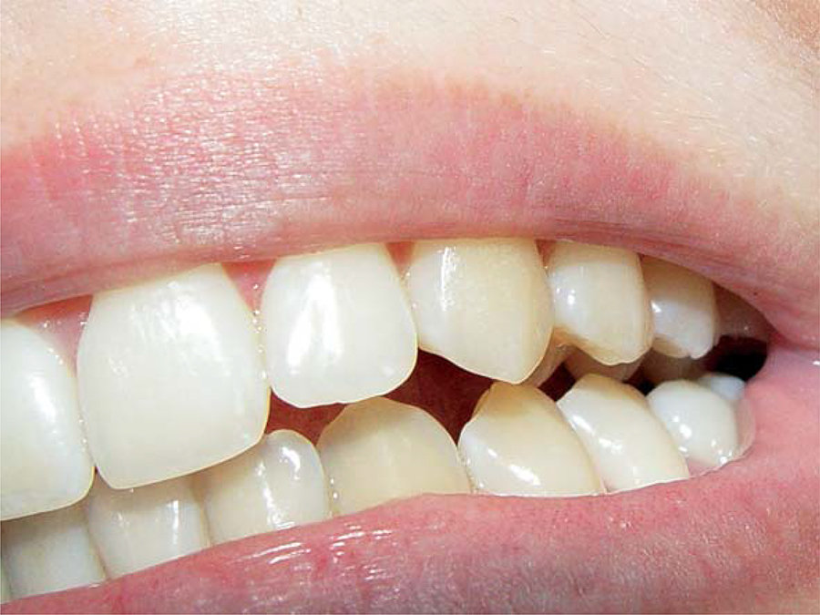 Можно ли использовать зубную коронку повторно