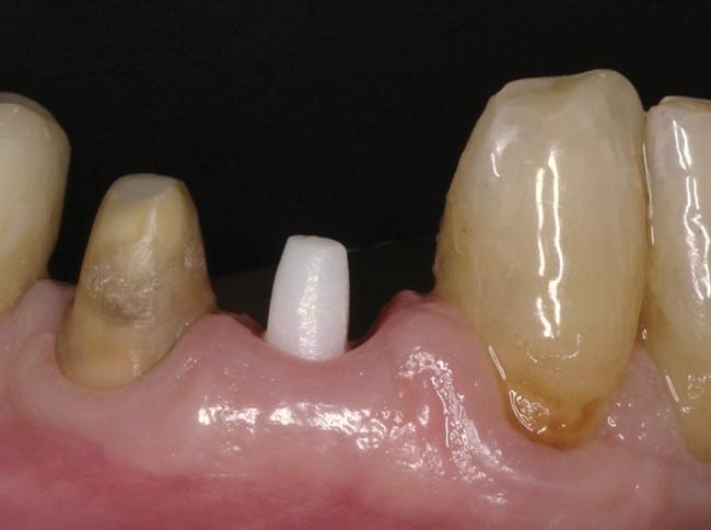 Обточили зубы под коронки а они болят — Зубы