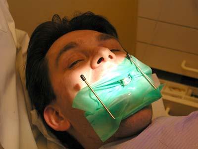 Обязательно ли депульпировать зубы под коронки