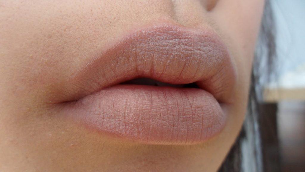 Почему на губах у взрослых появляется белый налет по утрам типичные причины пленки после сна