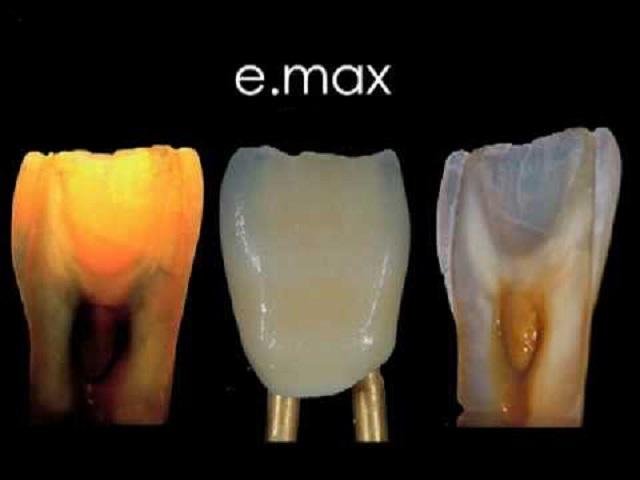 Коронки имакс – цена и отзывы на керамику emax