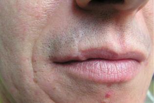 Scar on the lip