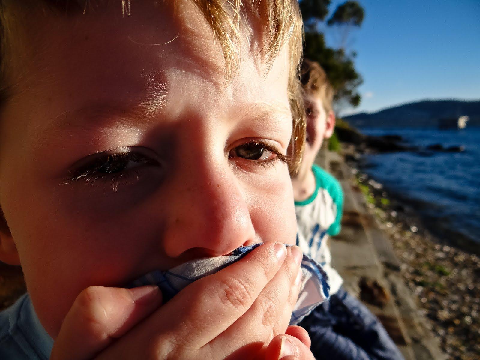 Ребенок прикусил язык: как остановить кровотечение картинки