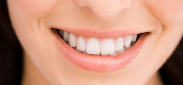 Технологии исправления кривых зубов винирами обзор используемых материалов