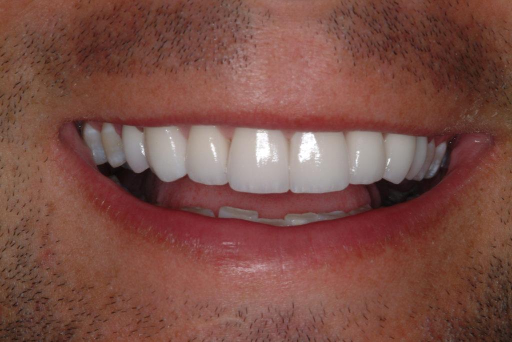 Можно ли снять виниры с зубов?