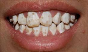 Дисплазия зуба
