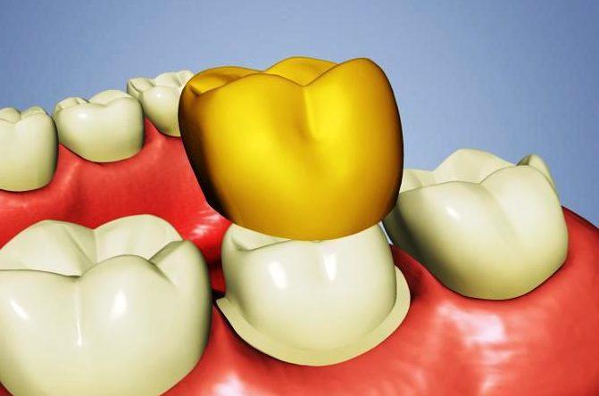 Шатается коронка на зубе что делать — Болезни полости рта