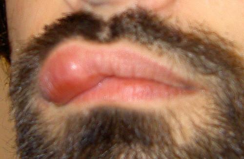 Уплотнение на губе с внутренней стороны